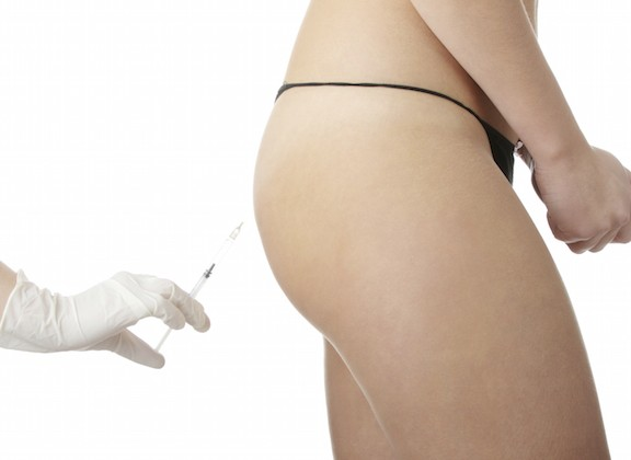Butt Augmentation Complications