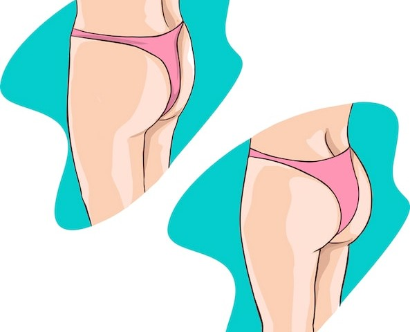 Types of Butt Implants