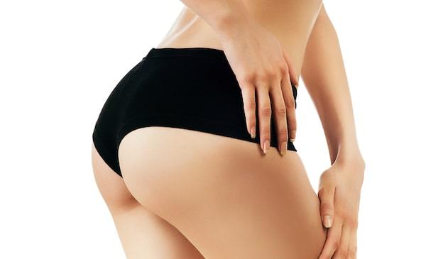 Butt Implants Popularity